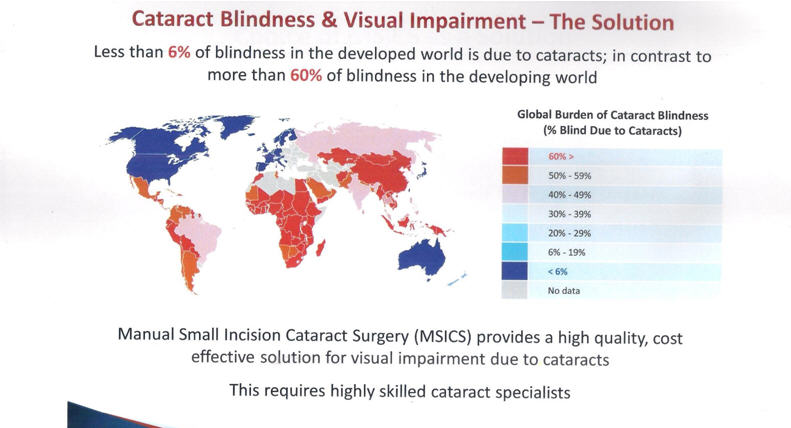 Cataract Blindness & Visual Impairment The Solution