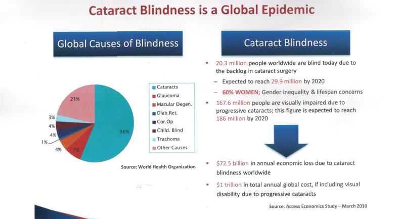 Cataract Blindness is a Global Epidemic